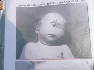 Example of a baby who was born in the aftermath of the bombing. There was a much higher than usual chance of birth defects due to radiation